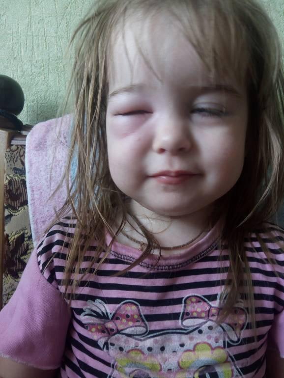 У ребенка отек глаз после укуса комара