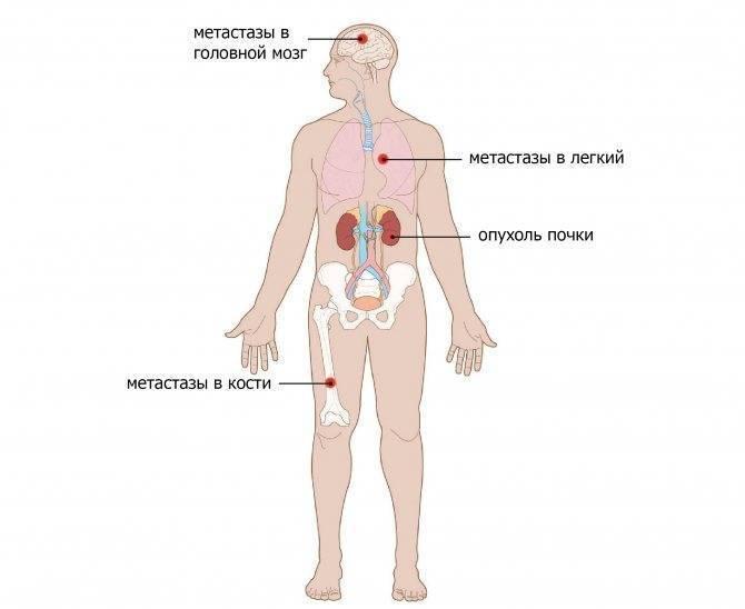 Как образуются метастазы в печени, какое лечение проводится и каков прогноз жизни при этой болезни