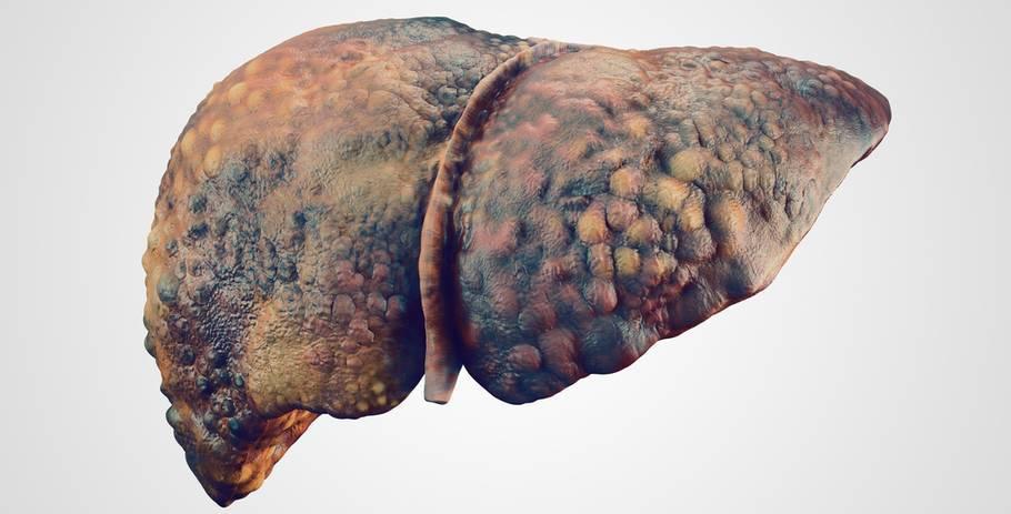 смерть от цирроза печени признаки