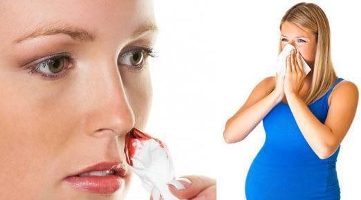 Частые кровотечения из носа: в чем причины и что делать? | москва