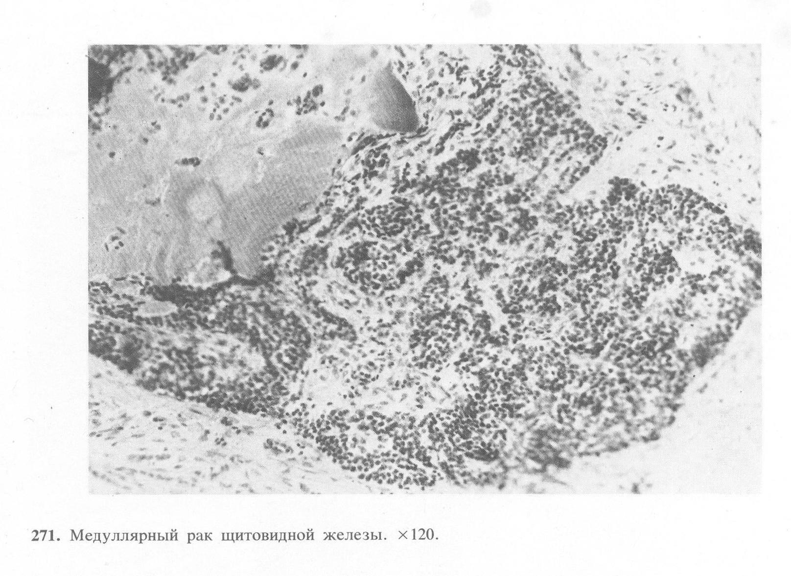 Фoлликулярный опухоль щитовидной железы: прогноз при правильном лечении