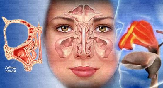 Киста гайморовой пазухи: причины заболевания, основные симптомы, лечение и профилактика