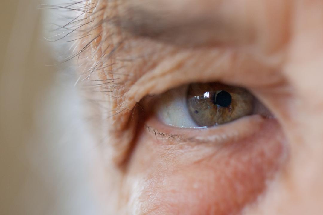 Вас не страшит неожиданная перспектива – полная слепота от глаукомы через 5-7 лет?
