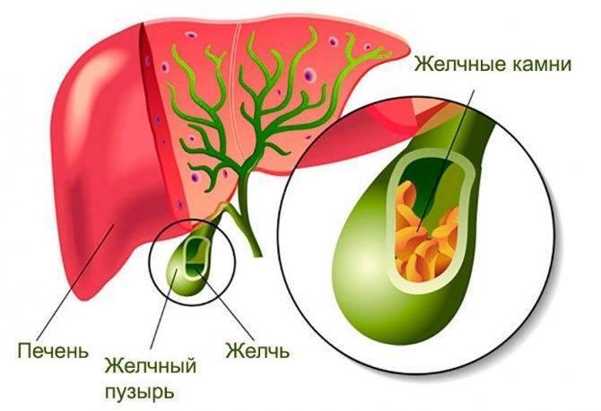 Лечение конкрементов в желчном пузыре медикаментозными и народными средствами
