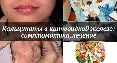 Кальцинаты в щитовидной железе что это