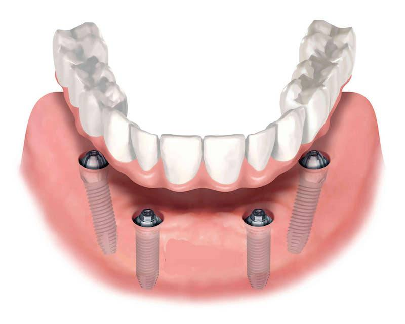 Несъемные зубные протезы. виды протезирования