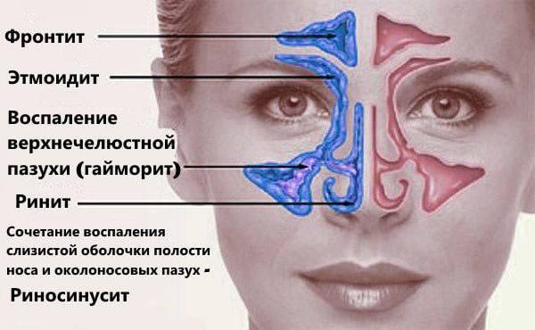 лечение пазух носа