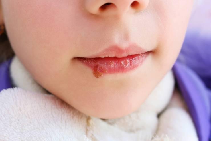 чем мазать герпес на губе у ребенка