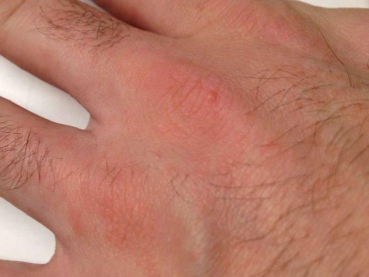Псевдочесотка или клещевой дерматит