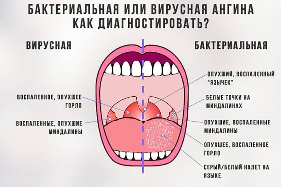 можно ли вылечить ангину без антибиотиков