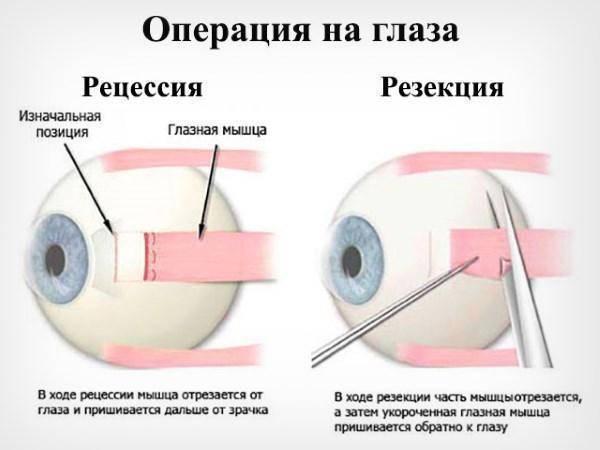 операция косоглазия у детей