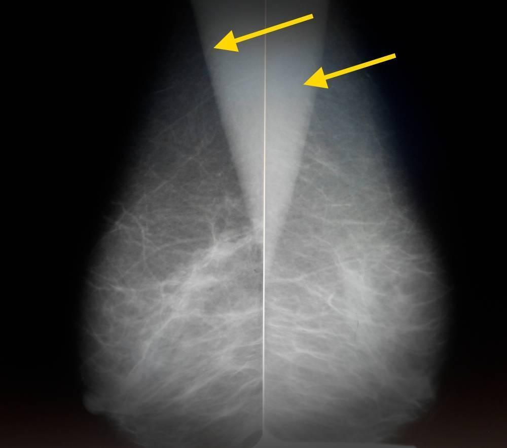 Цифровая маммография или узи молочных желез