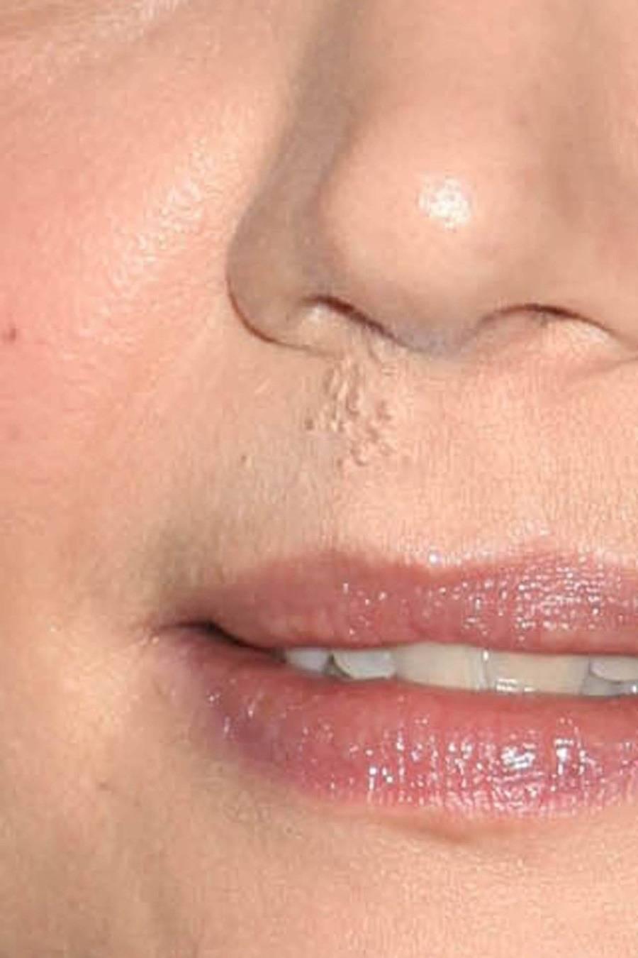 герпес на носу лечение