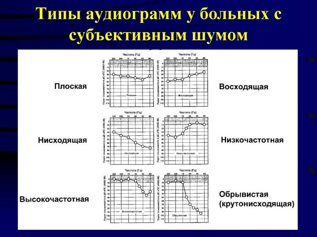 Где проверить слух у ребенка? (москва) - аудиограмма ребенку - запись пользователя ольга (athen) в сообществе здоровье - от трех до шести лет в категории рекомендации и поиск врачей (указывать город) - babyblog.ru