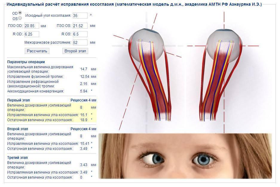 Операция на косоглазие: ход и стоимость исправления, осложнения