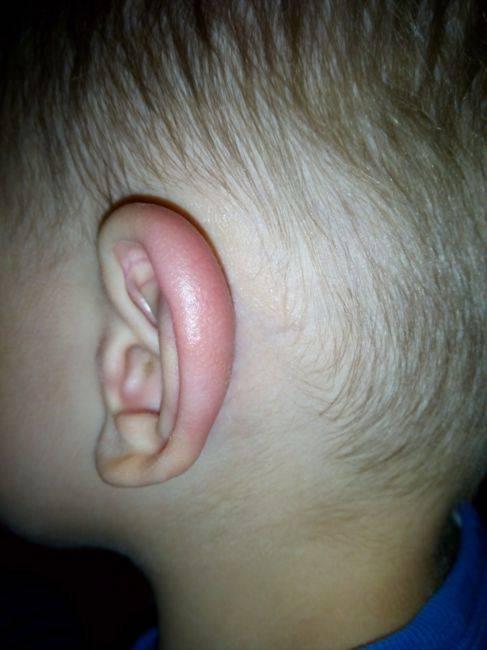 красное ухо у ребенка