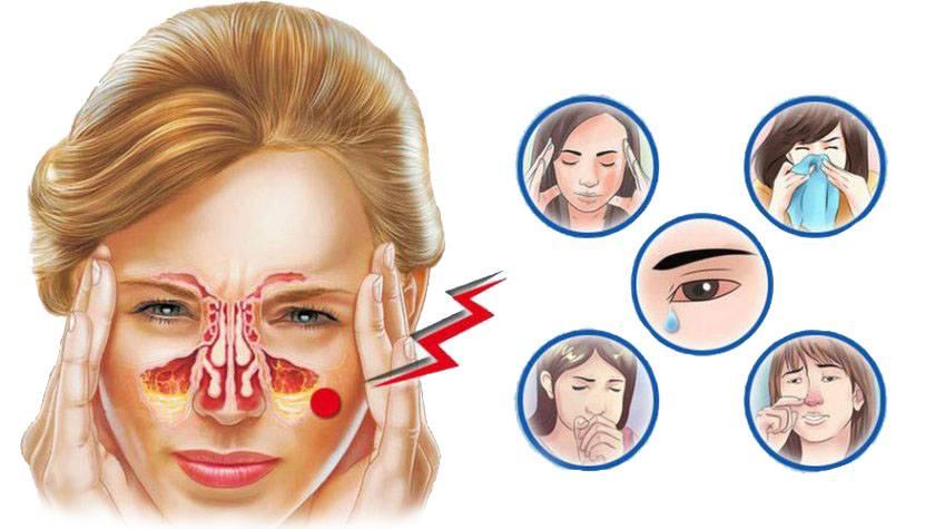 Что делать если болят лобные пазухи носа, причины и лечение?