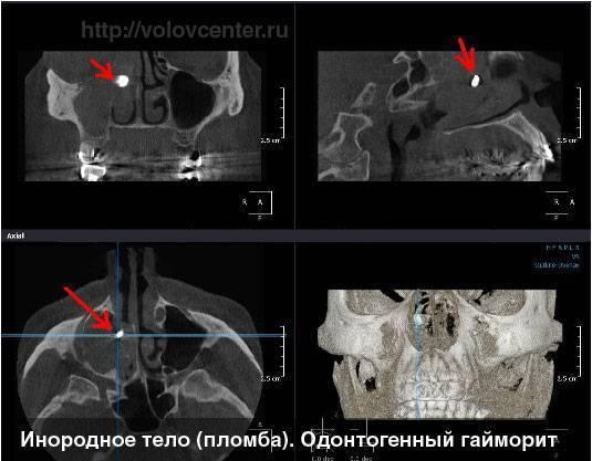 Инородное тело в гайморовой пазухе: способы лечения, симптомы и последствия