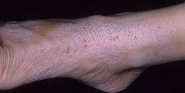 дерматиты кожи на ногах
