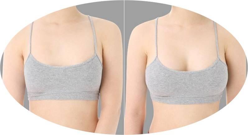 У девочки увеличены груди - запись пользователя светлана (svetaovs11) в сообществе детские болезни от года до трех в категории другое - babyblog.ru