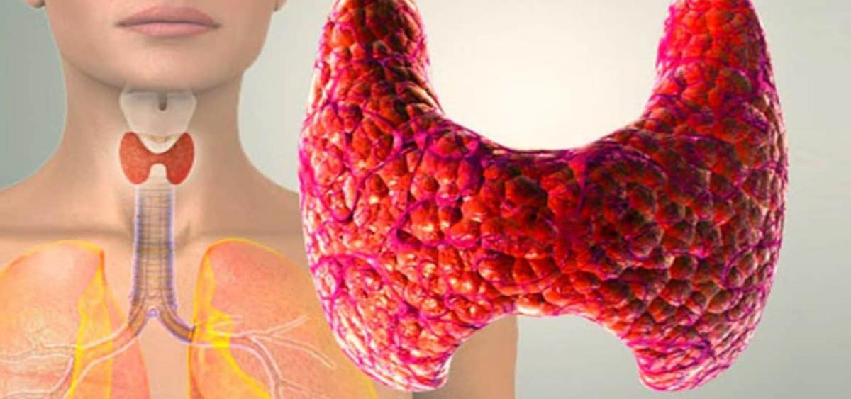 Щитовидная железа уменьшена в размерах симптомы и лечение
