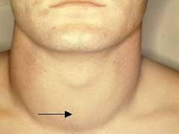 Щитовидная железа у мужчин уменьшена: вылечить, диета, железа, мужчин, народные средства, причины возникновения, уменьшена, щитовидная