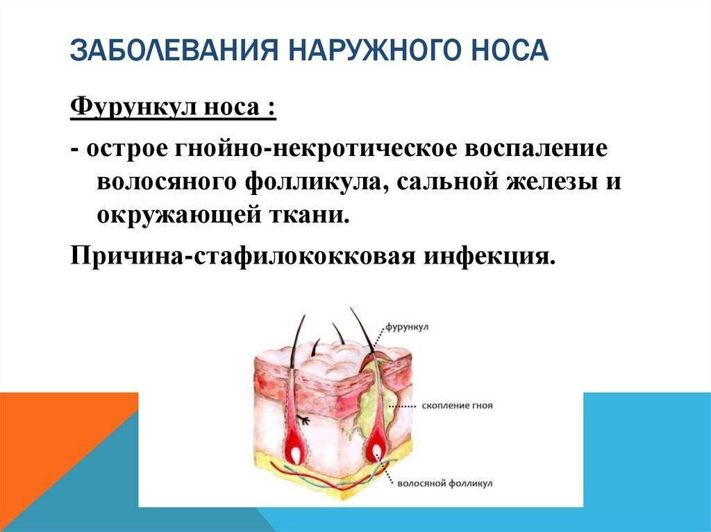 хроническое заболевание полости носа