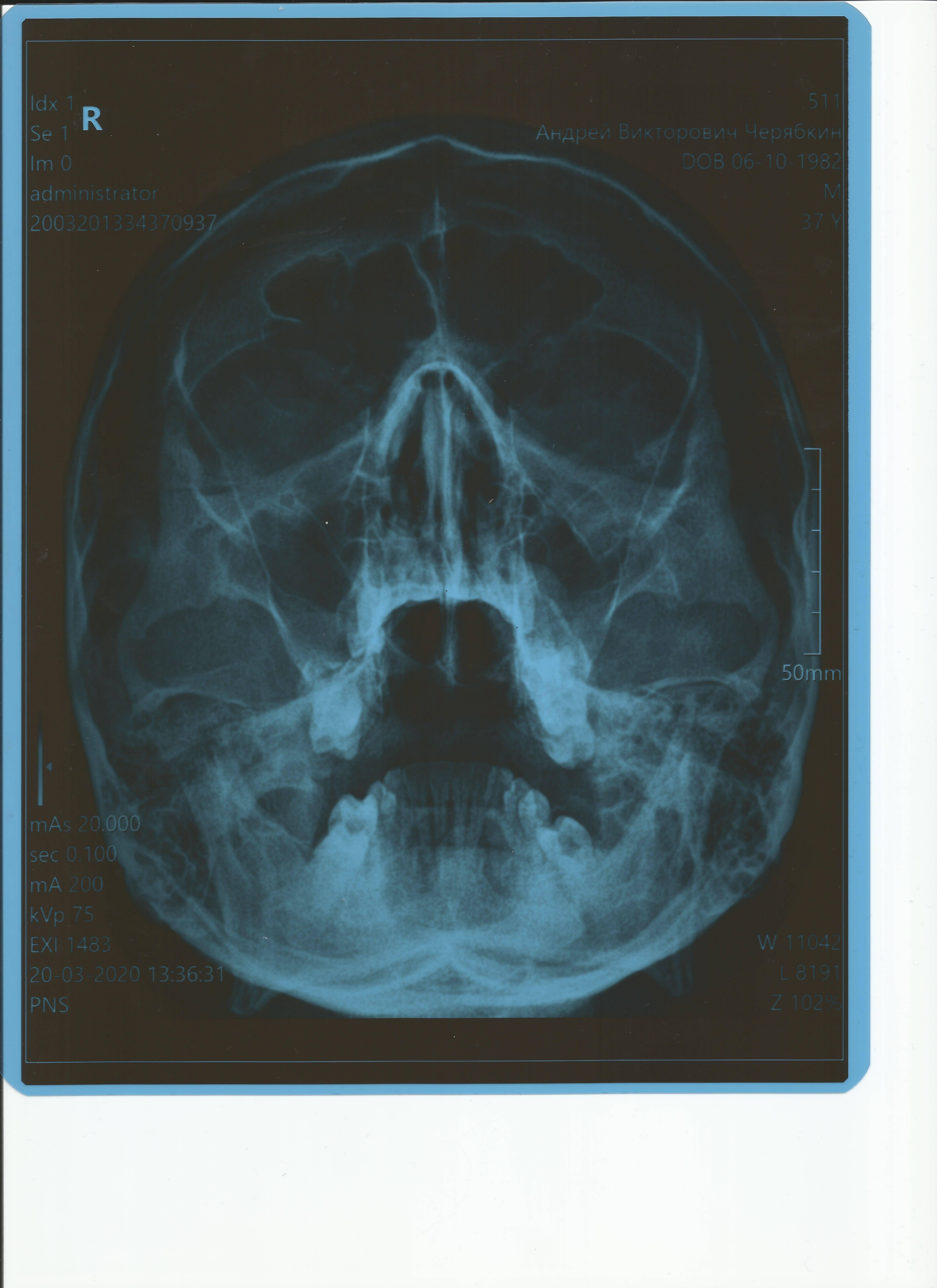Симптомы и возможные осложнения при кисте гайморовой пазухи