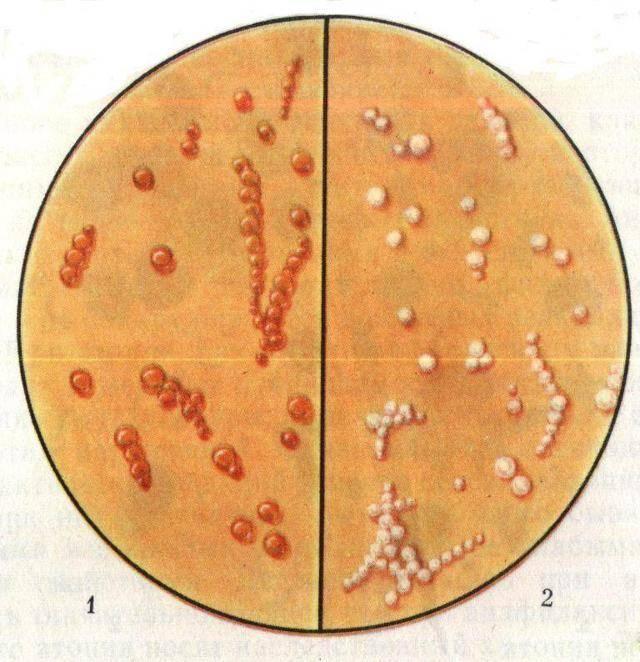 Мазок из горла на стафилококк