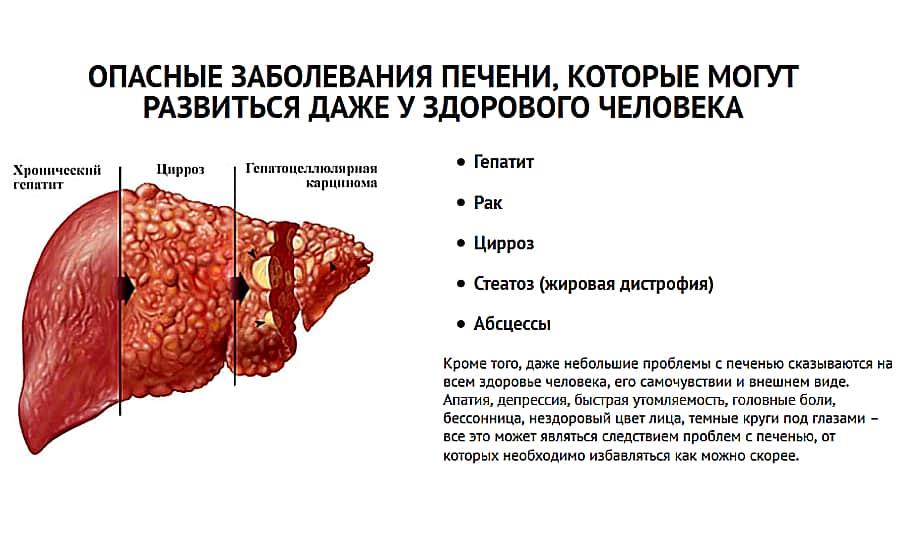 Может ли болеть печень при гепатите с