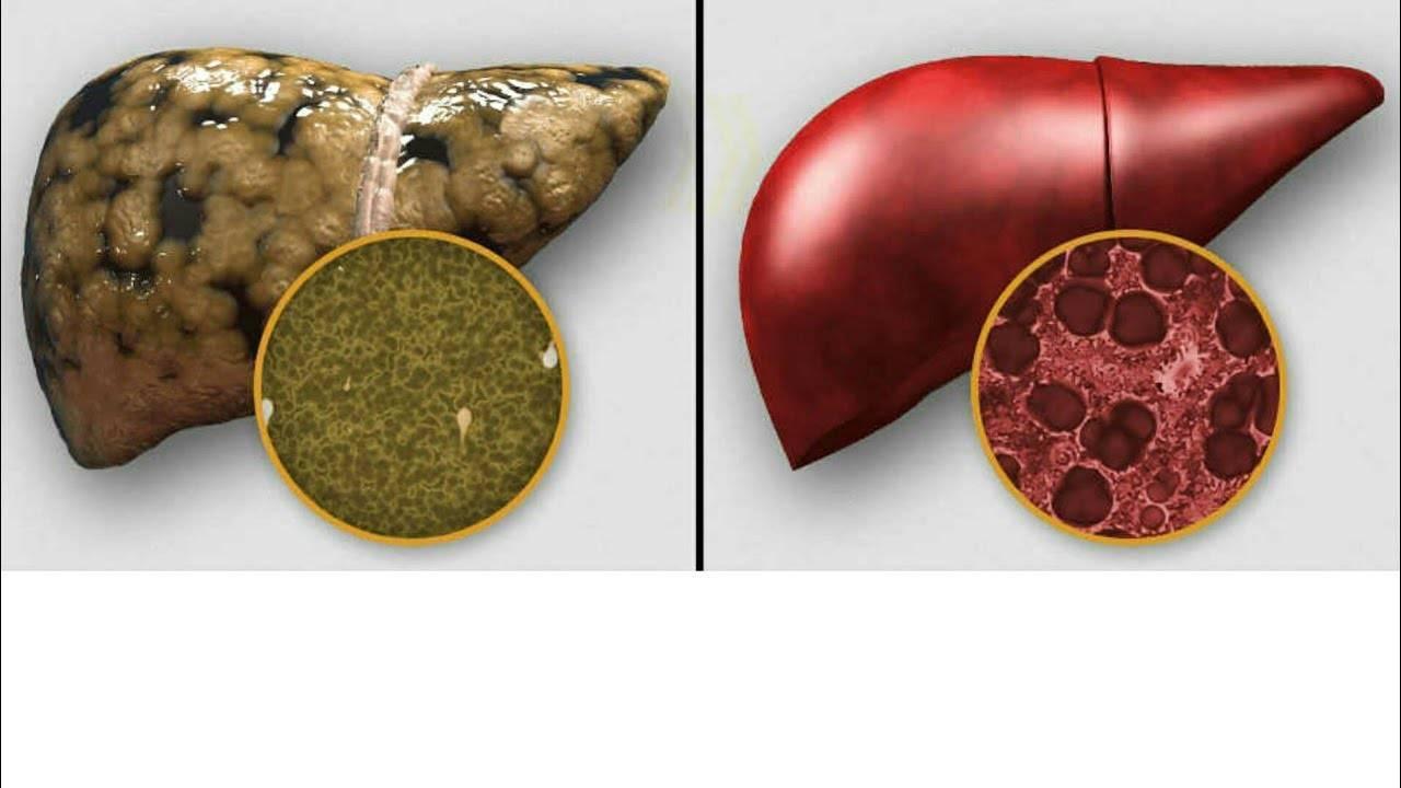 Реактивный гепатит у ребенка 2 лет - лечение печени