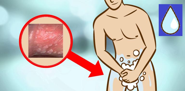 Хламидиоз у женщин — фото, которые помогут вам распознать заболевание
