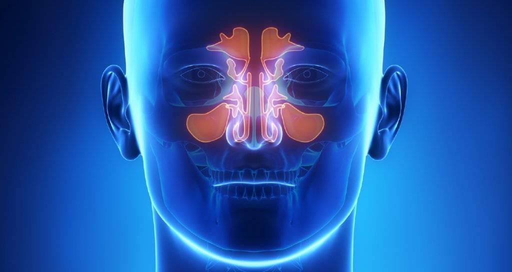 Хронический ринит: симптомы и лечение у взрослых