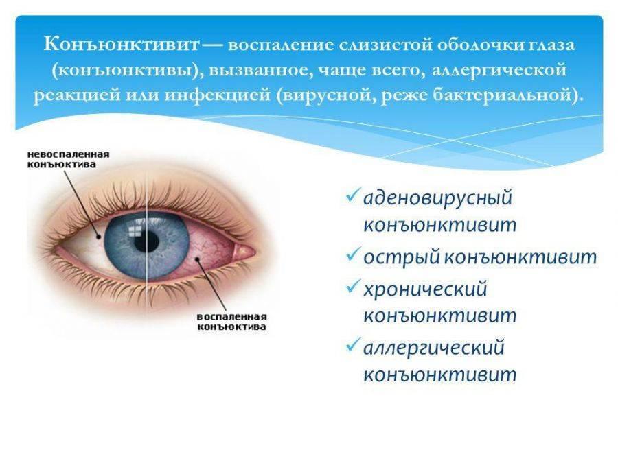 вирусный конъюнктивит симптомы у детей