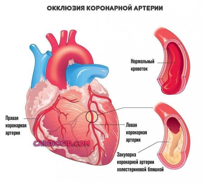 Атеросклероз аорты сердца