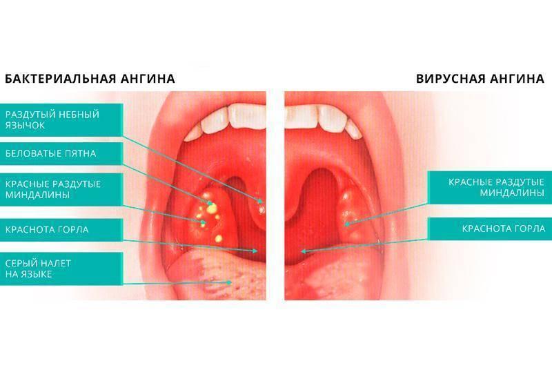 На какие заболевания указывает белый налет на миндалинах с температурой и без нее?