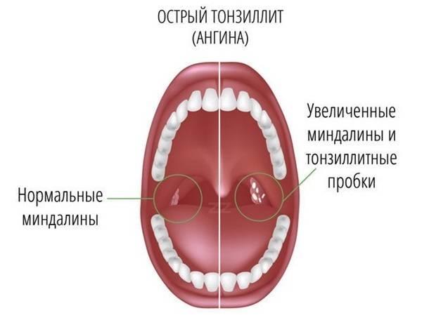 Осложнения после ангины [12 видов осложнений]