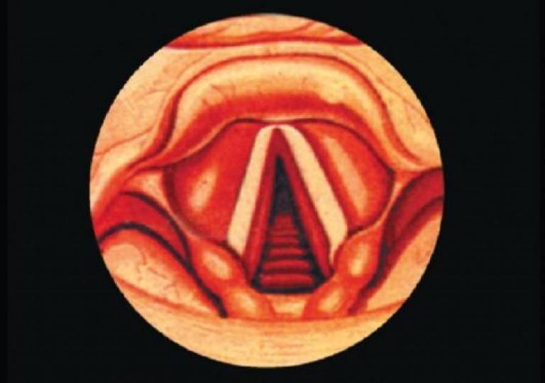 острый ларингит у ребенка лечение
