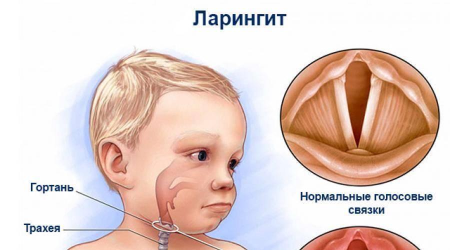 Ларинготрахеит у детей: лечение по комаровскому