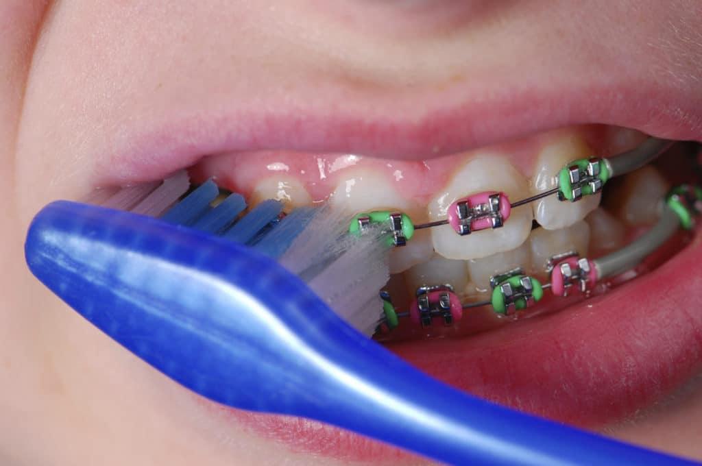 Зубная паста для брекетов — виды очищающих средств