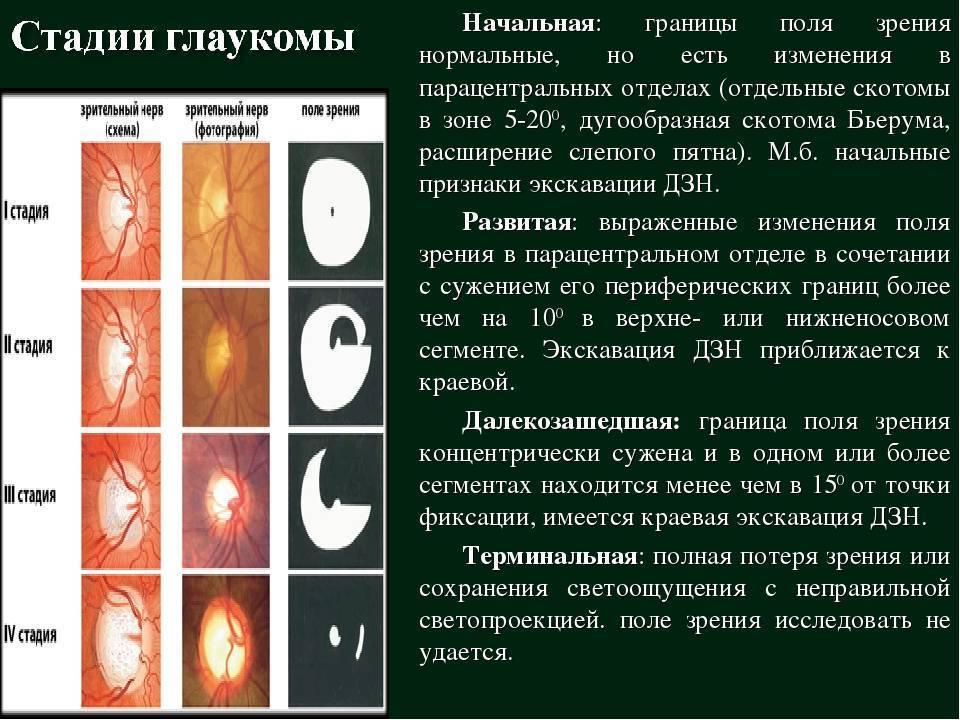 Открытоугольная глаукома 1 и 2 степени: причины, симптомы, лечение и профилактика