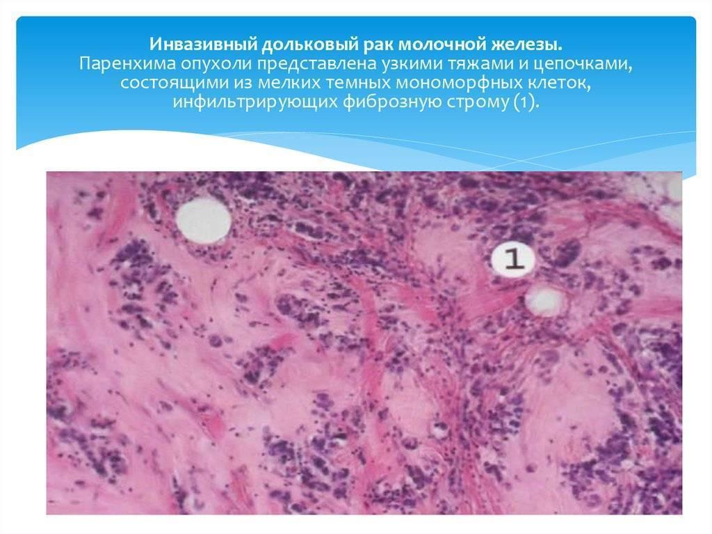 Инвазивный рак молочной железы — что это, причины, виды, лечение