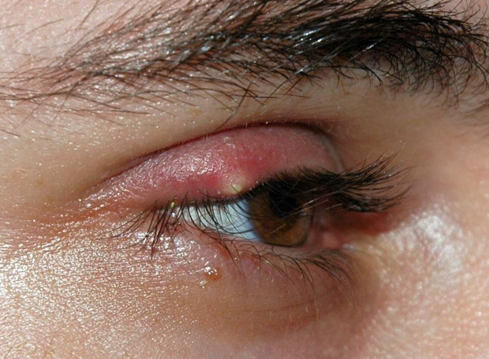 Причины появления герпеса на глазу и методы его лечения