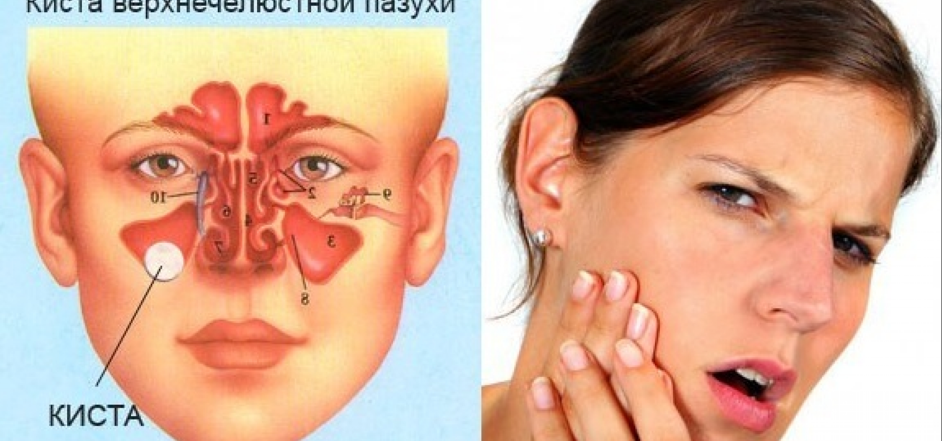 Особенности строения и функции верхнечелюстной пазухи, заболевания синусов носа