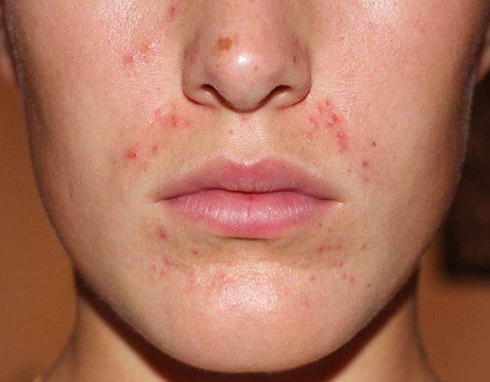 причина периорального дерматита