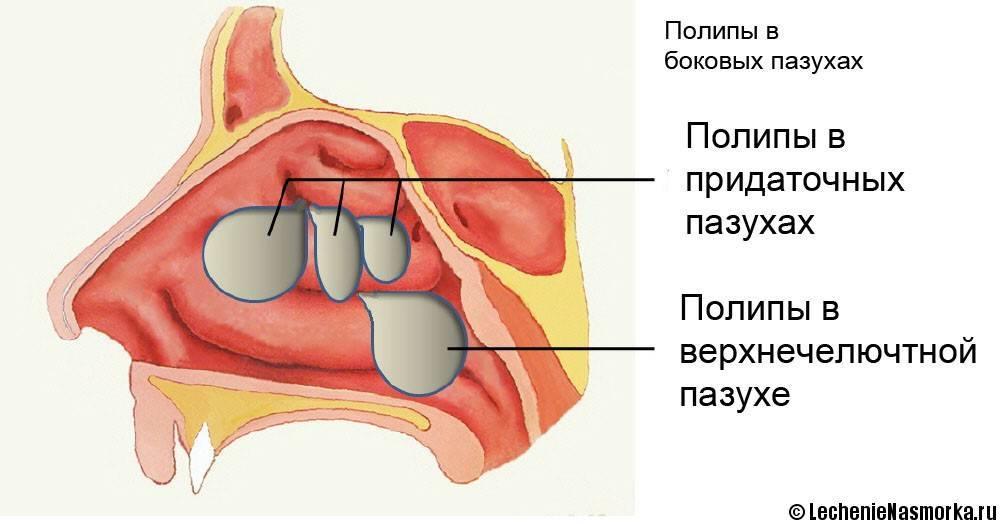 Как лечить полипозный гайморит