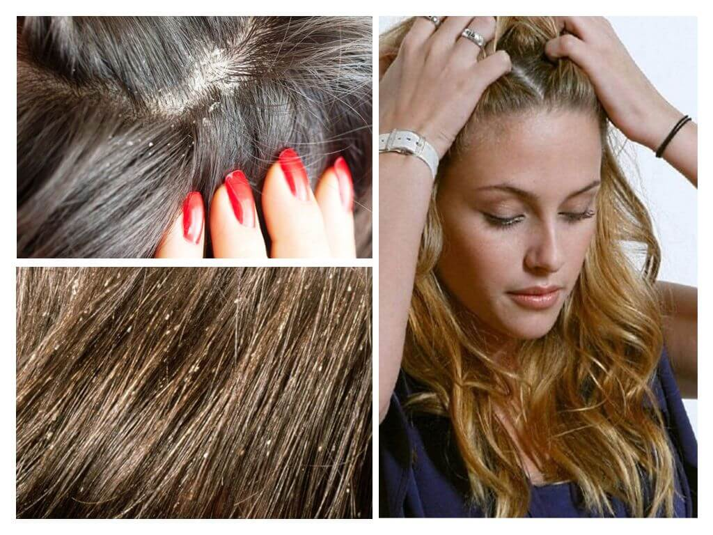 могут ли вши завестись на окрашенных волосах