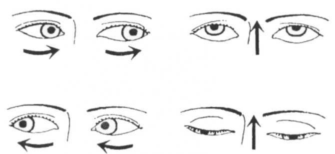 гимнастика для глаз при астигматизме у детей