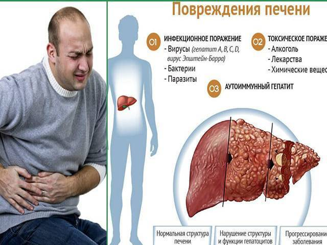лечение болезней печени народными средствами