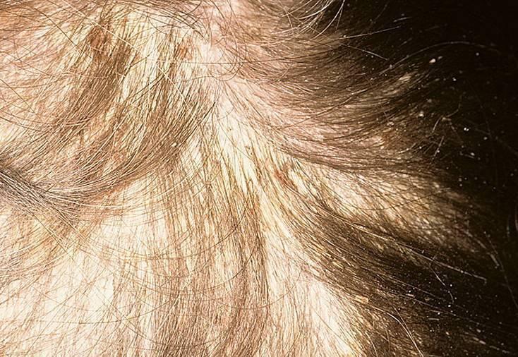 Себорейный дерматит у детей: эффективные способы лечения